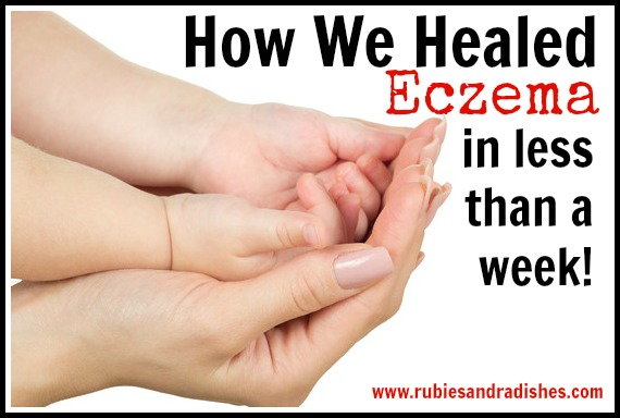 How To Treat Atopic Eczema Naturally